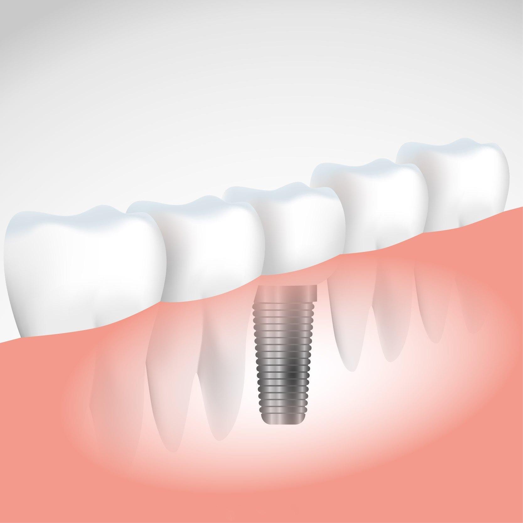 Implantes dentales: Todo lo que debes saber - Acosta Cubero