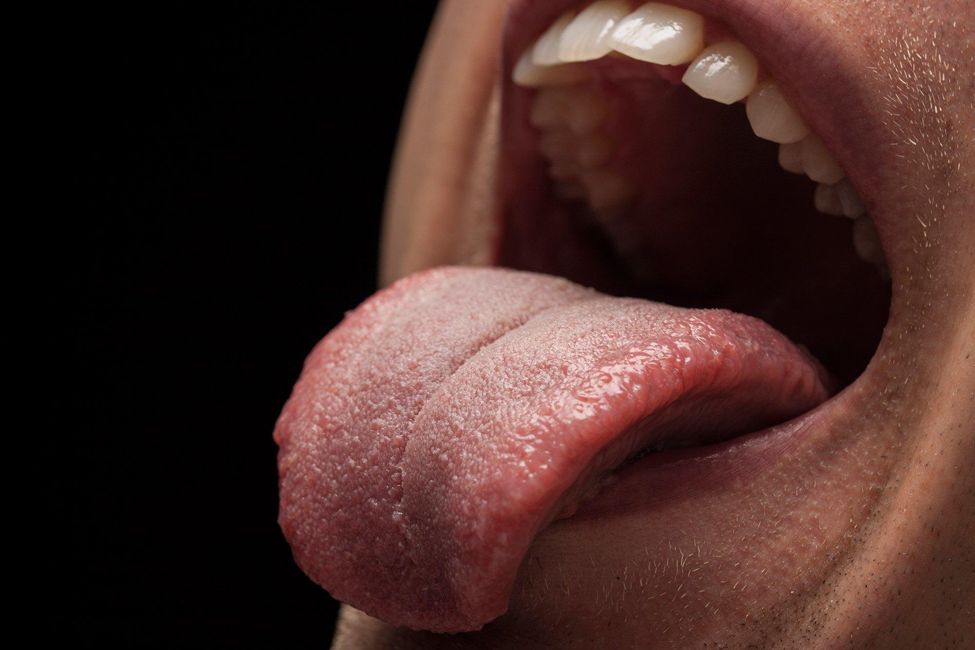 Síndrome de boca ardiente: síntomas, causas y factores de riesgo - Acosta Cubero