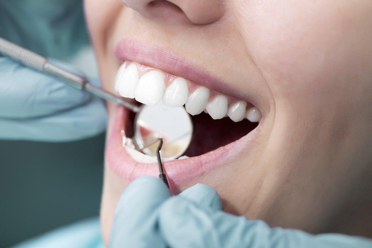 Dentista en busca de caries