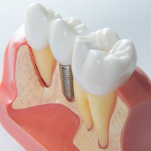 Maqueta de implante dental