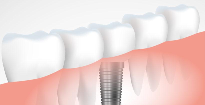 Implantes dentales: Todo lo que debes saber