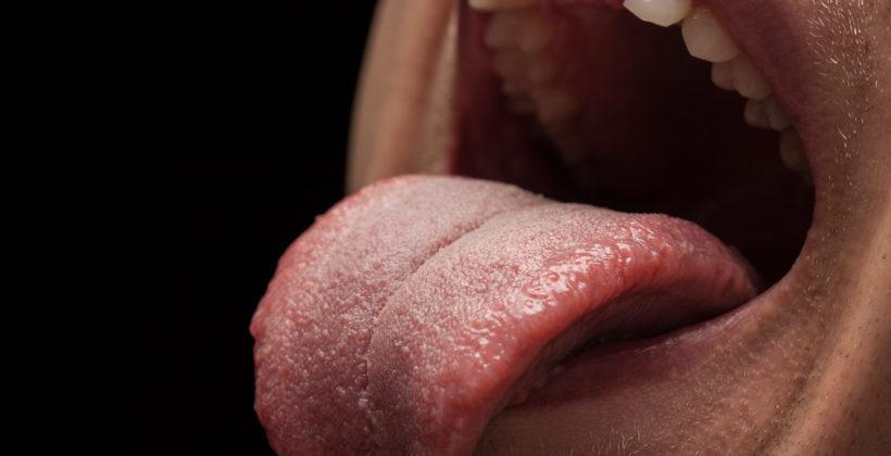 Síndrome de boca ardiente: síntomas, causas y factores de riesgo