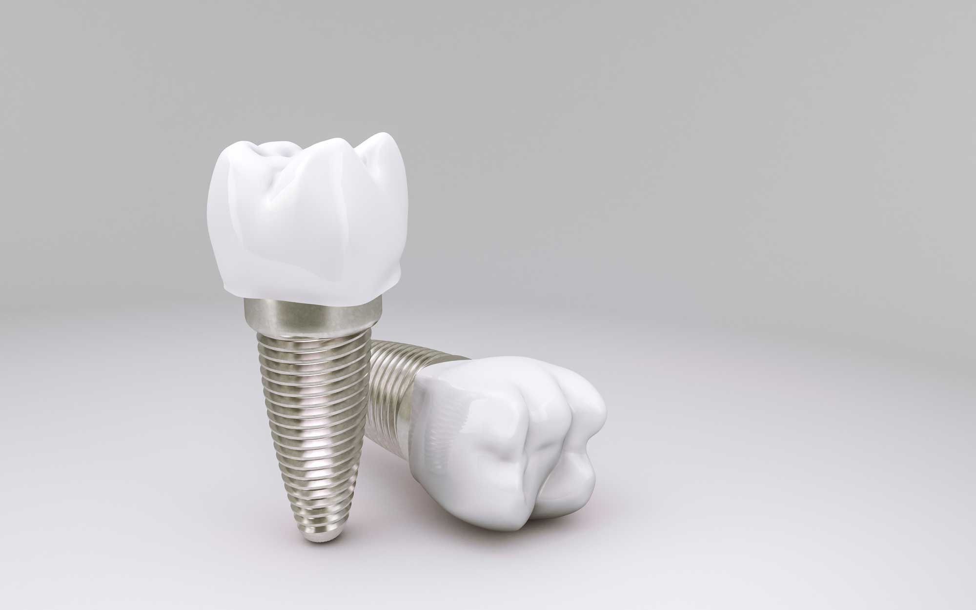 Implantes - Acosta Cubero